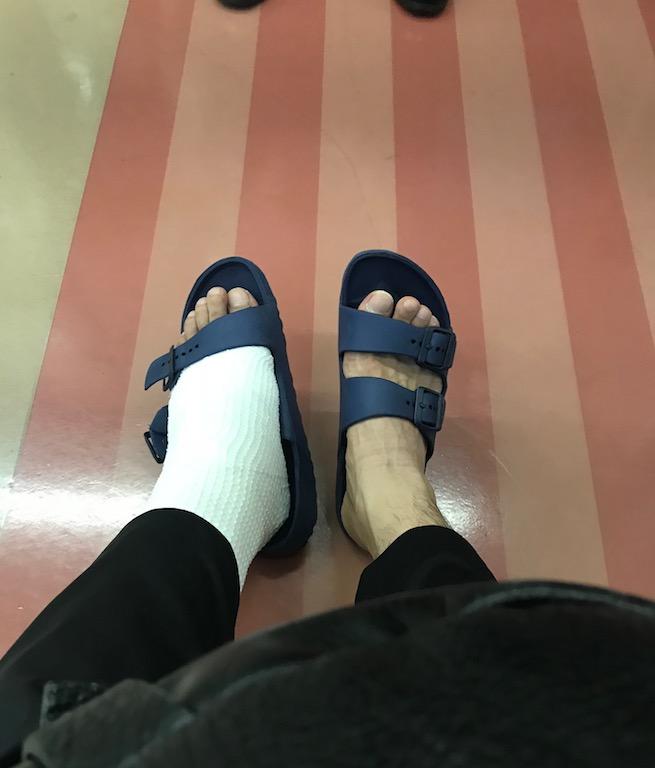 歩行治療用ギプス