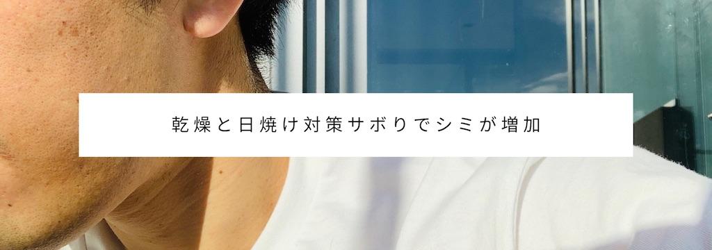 老け顔原因・特徴:どんなに肌が綺麗でもシミがあれば老け顔に見える