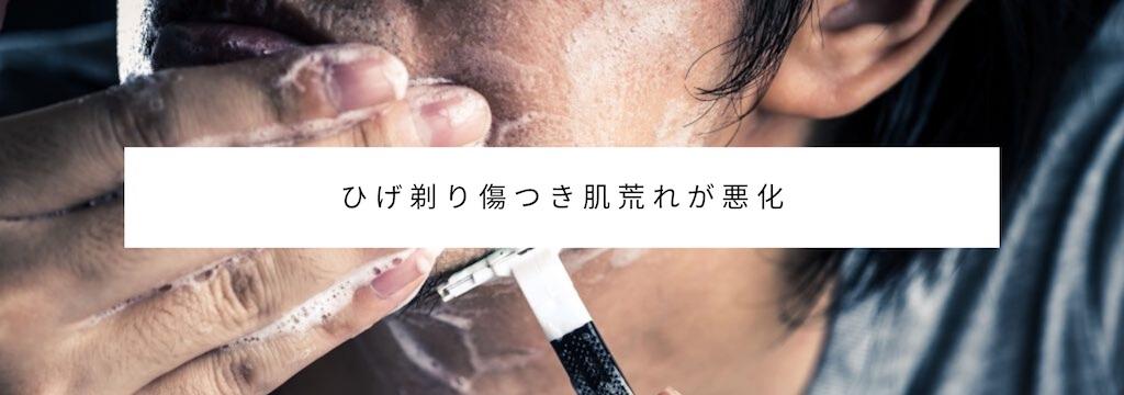 老け顔原因・特徴:口の周りの肌荒れが目立つ男性はカッコ悪い