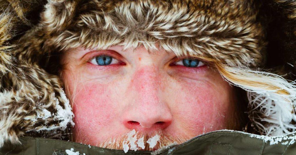 冬のスノボでちゃんと日焼け止めしないと紫外線で肌はボロボロに