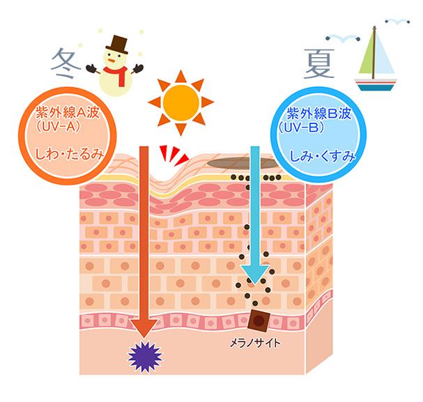 紫外線A波(UVA)はしわやたるみの原因。引用:パジャマ屋