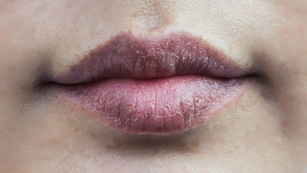 乾燥したカサカサ唇はかなり印象が悪いので放置しちゃダメ!!
